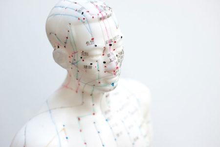 Akupunktur in der hausärztlichen Praxis